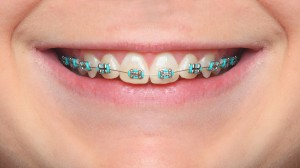 Close up smile with orthodontic braces.