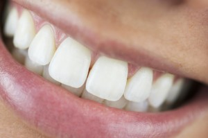 Whitened Aligned Teeth