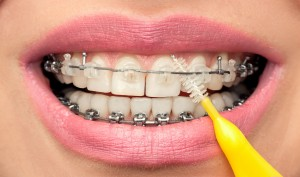 Dental Hygiene of Teeth with Braces with Interdental Brush.