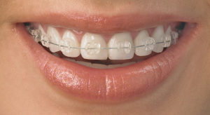 naperville-orthodontic-treatment