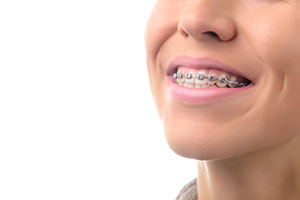 Smiling With Metal Braces