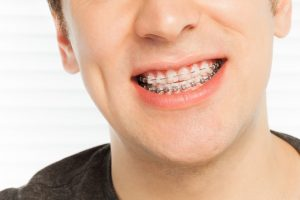 smile with orthodontic cases
